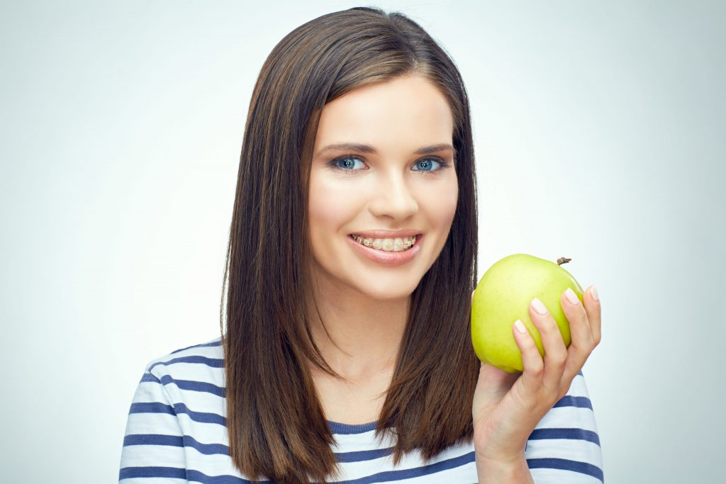 Food to Avoid with Braces - Girl smile with teeth and toothy braces holding green apple